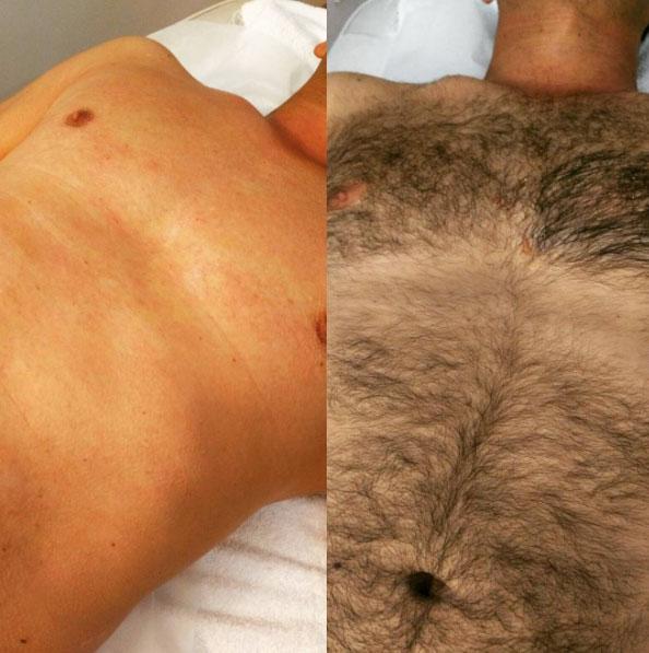Wax pubic area male
